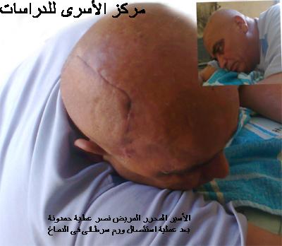 مجموعة من المؤسسات والشخصيات المعنية بالأسرى تناشد الرئيس أبو مازن ووزير الصحة لانقاذ حياة الأسير ال